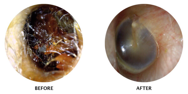 ear wax removal before & after image